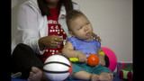 Growing number of problems found in Brazilian babies affected by Zika
